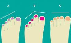 Ayak parmaklarına göre karakter analizi